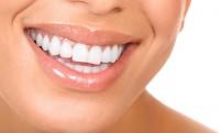 6 másodperc alatt tiszta fogak – ráharapsz?